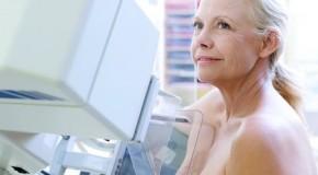 Carreta da Mamografia vai visitar Pratinha, no mês de abril